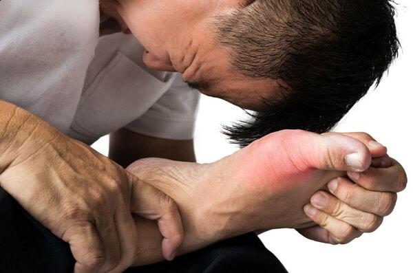 Kiwi làm trầm trọng các triệu chứng bệnh gout