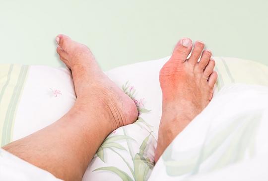Cách điều trị bệnh gout hiện nay - Bạn có biết?