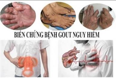 Những biến chứng khó lường của bệnh gout