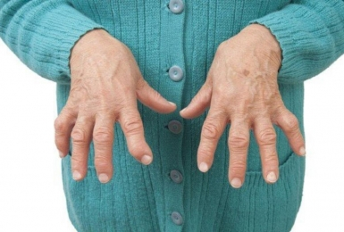 Phụ nữ dễ mắc viêm khớp dạng thấp