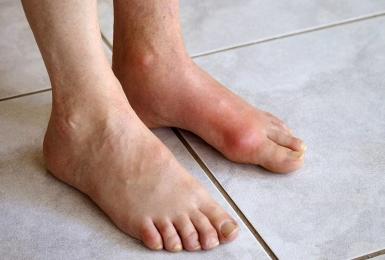 Những triệu chứng bệnh gout điển hình bạn không thể bỏ qua
