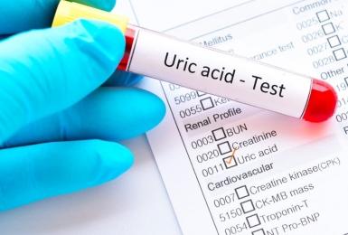 Những điều bạn cần biết khi thực hiện xét nghiệm acid uric