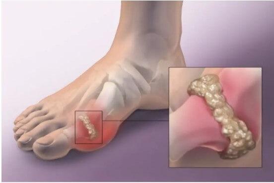Tìm hiểu bệnh Gout