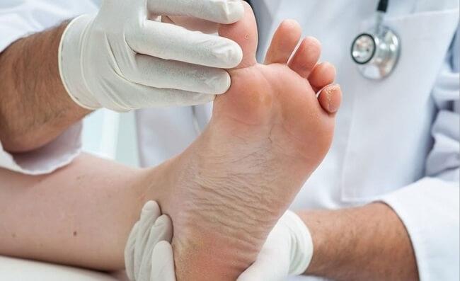 Chẩn đoán bệnh gout được thực hiện như thế nào?