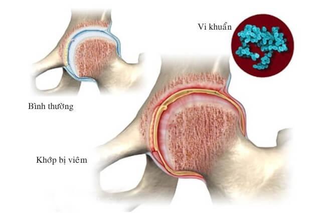 Chẩn đoán phân biệt bệnh gout và tình trạng khớp bị nhiễm khuẩn