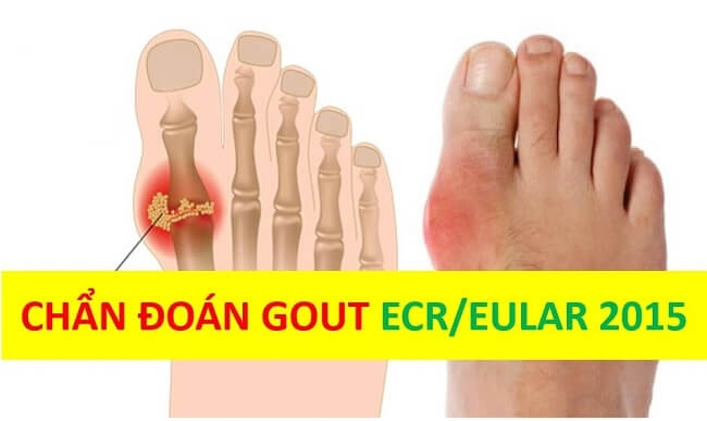 Tiêu chuẩn chẩn đoán bệnh gout theo ACR EULAR 2015