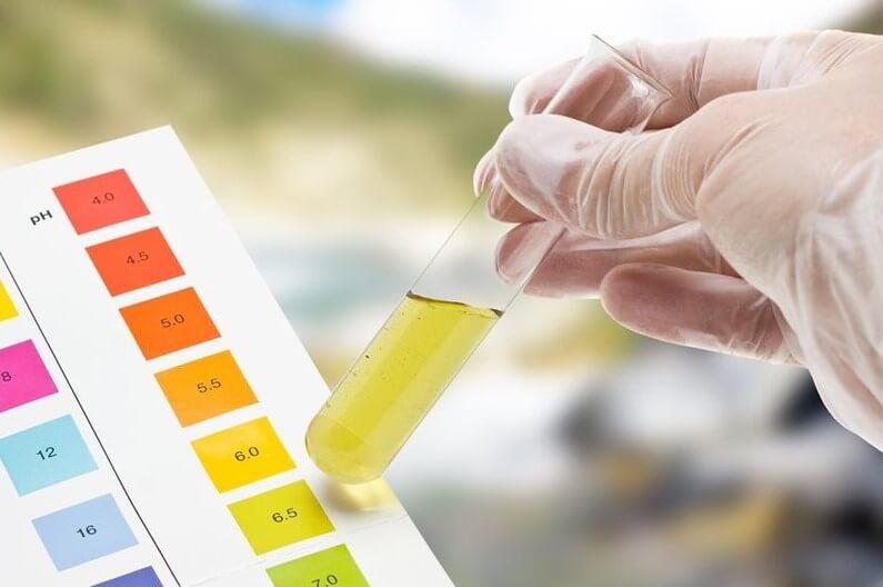 Xét nghiệm acid uric nước tiểu