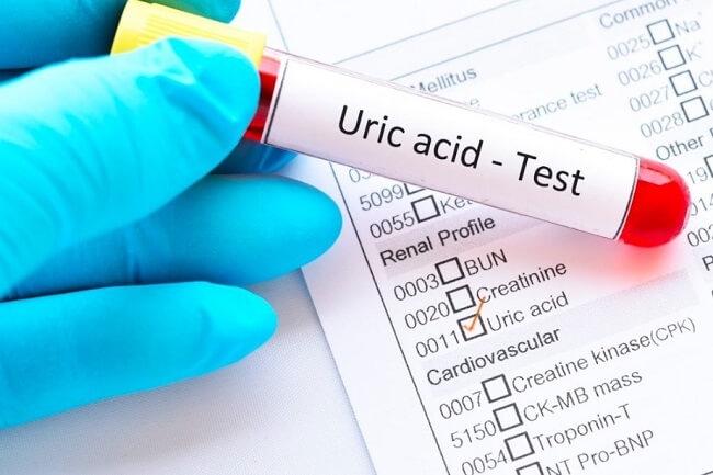 Xét nghiệm acid uric là gì?