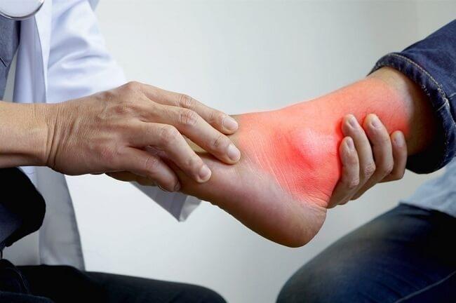 Chẩn đoán bệnh gout dựa vào dấu hiệu lâm sàng