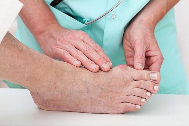 Điều trị bệnh gout với mục đích giảm đau nhanh và phòng ngừa cơn gout tái phát