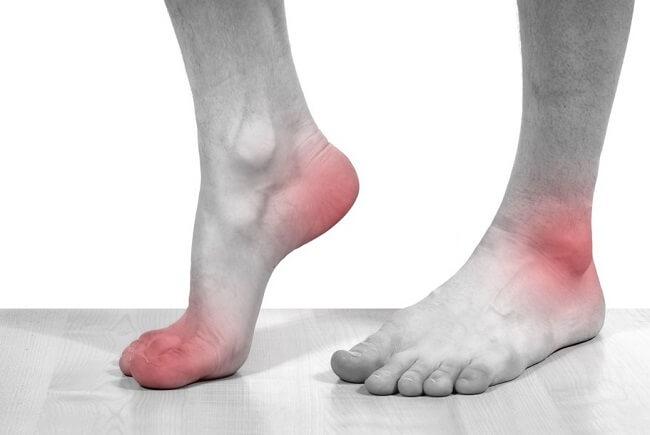Triệu chứng sưng, nóng và đỏ của bệnh gout