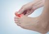 Đau ngón chân cái - Bệnh lý nguy hiểm không được chủ quan!