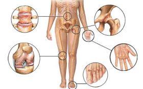 Các bệnh viêm khớp thường gặp – bạn có biết?