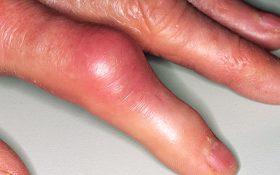 Tự điều trị bệnh gút tại nhà
