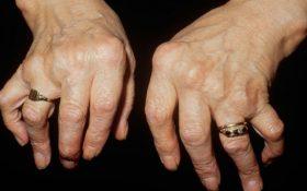 Nguy cơ tàn phế vì viêm khớp dạng thấp