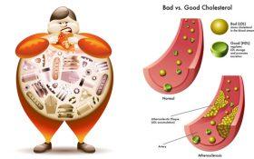Mối liên hệ giữa cholesterol và axit uric