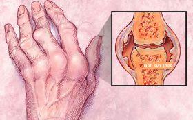 Những câu hỏi thường gặp về bệnh viêm khớp dạng thấp