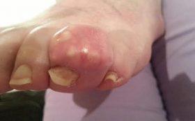 Bệnh gout có nguy hiểm không? Cách điều trị gout như thế nào?