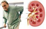 Mối liên quan giữa bệnh gút và suy thận