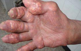 Hạt tophi – Biến chứng nguy hiểm của bệnh gút